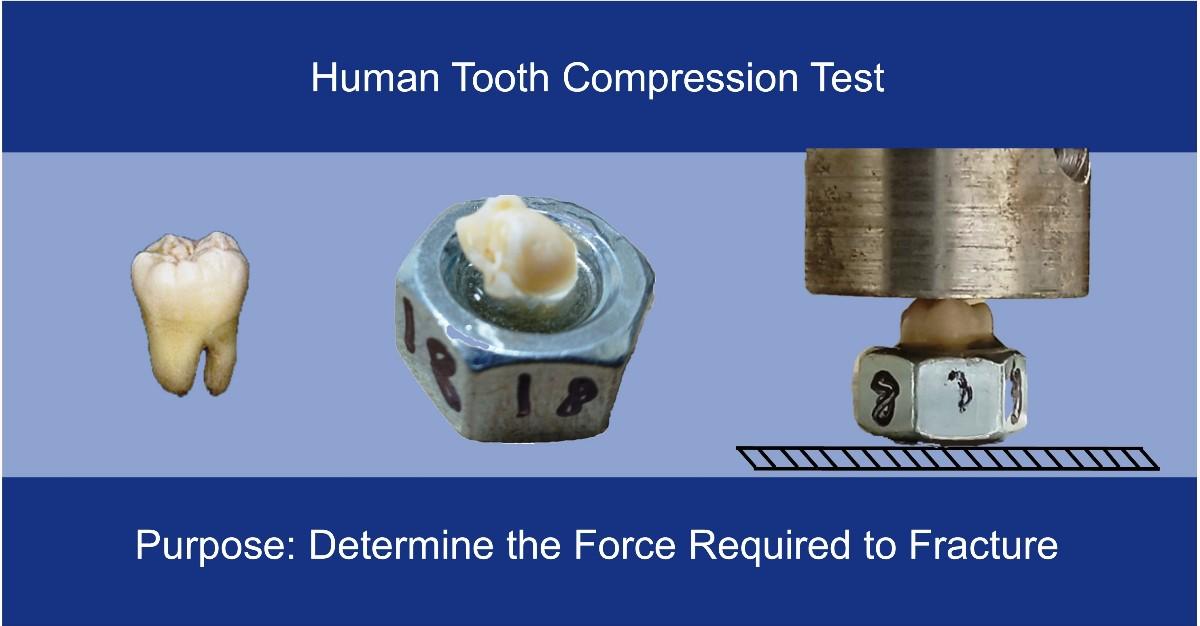 ASU Senior Thesis: Human Tooth Compression Test